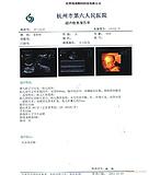 医用纸质胶片  医用彩色激光打印胶片  双面激光打印胶片